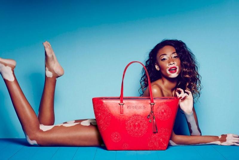 ensaio de mda com a modelo com vitiligo Winnie Harlow da marca desigual