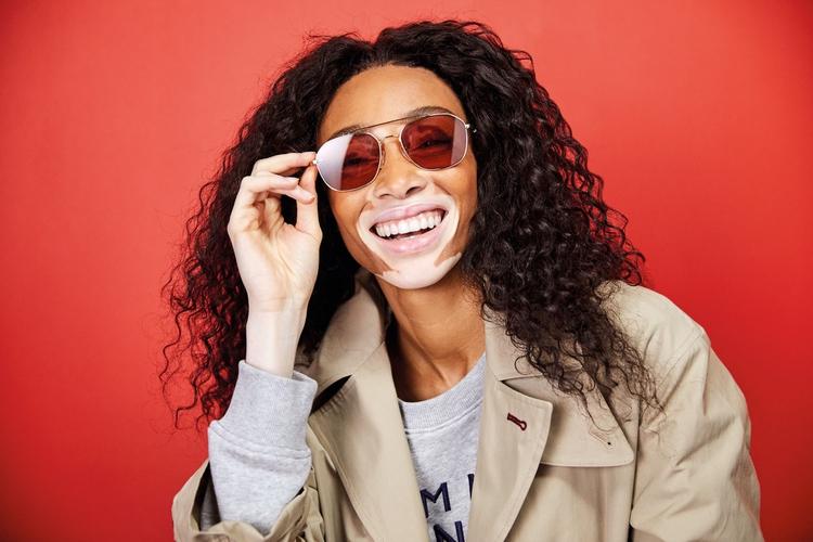 modelo com vitiligo Winnie Harlow