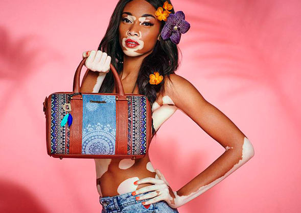 winnie_harlow_modelo com vitiligo